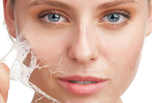 How To Get The Best Eczema Treatment In Darwin, For Damaged Skin