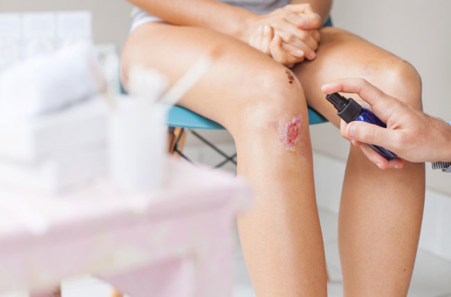 How To Prevent and Treat Bruising after Surgery?