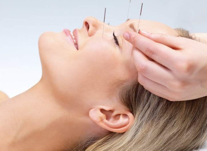 Benefit From Acupuncture for depression