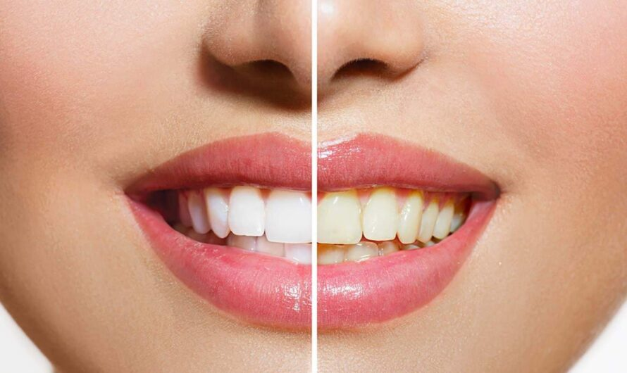 Are your teeth losing their natural color?